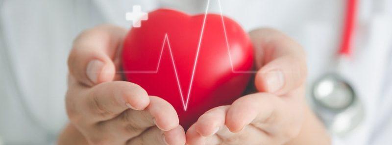What is an EKG