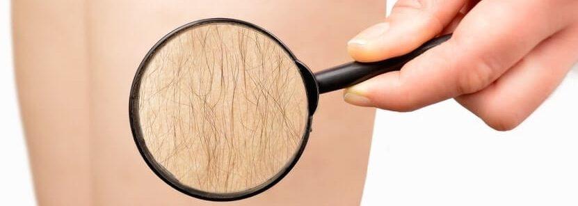 Hirsutism Excessive Hair Growth